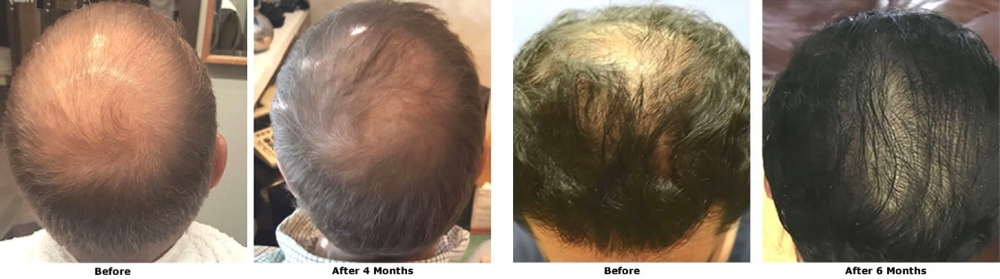 More Hair Naturally® -  World's first stem-cell-based hair regrowth treatment